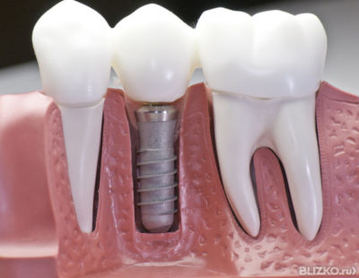 Импланты зубов нижний новгород под ключ цена