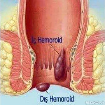 Лечение геморроя эн клиник челябинск